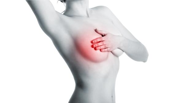 Un estudio concluye que un tipo de cáncer de mama se podría curar sin quimioterapia