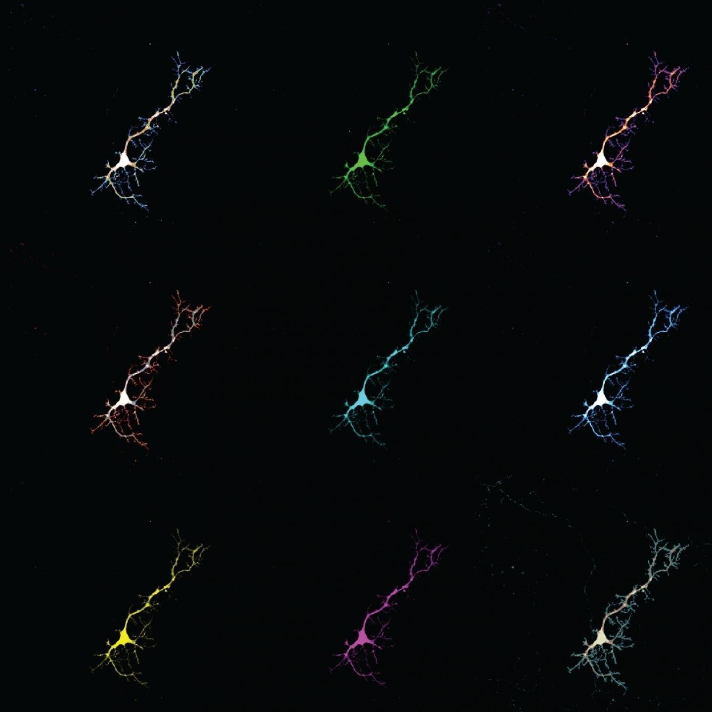 Un Estudio En Ratones Muestra Que La Bilirrubina Puede